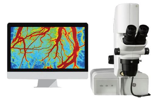 高分辨激光血流成像系统
