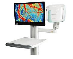 大视野激光血流成像系统